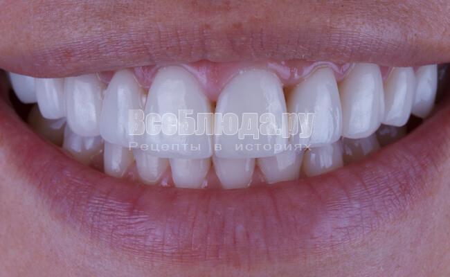 Виниры на зубы: цена и адреса клиник в Москве